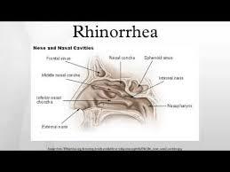 Rhinorrhea